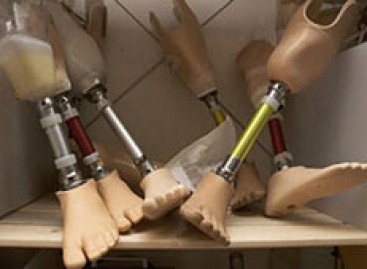 38 військовослужбовців-учасників АТО отримали протезно-ортопедичну допомогу від Львівського казенного експериментального підприємства